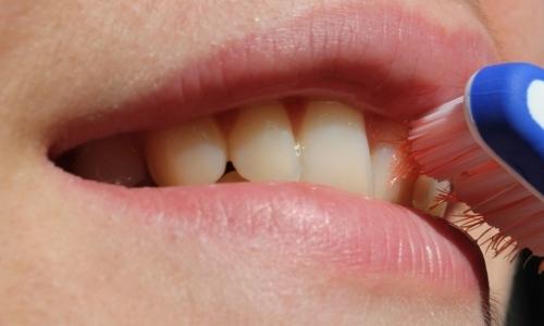 Alitosi: può essere dovuta ad unigiene orale poco corretta o accurata.